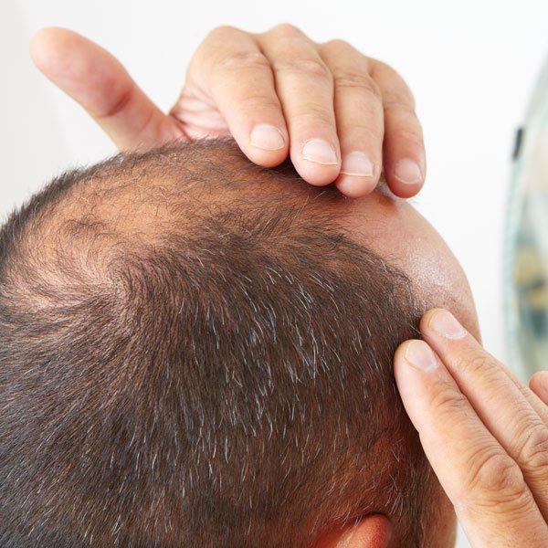 Pattern Baldness