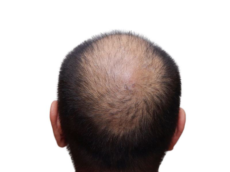 Hair Replacement Surgery Toronto