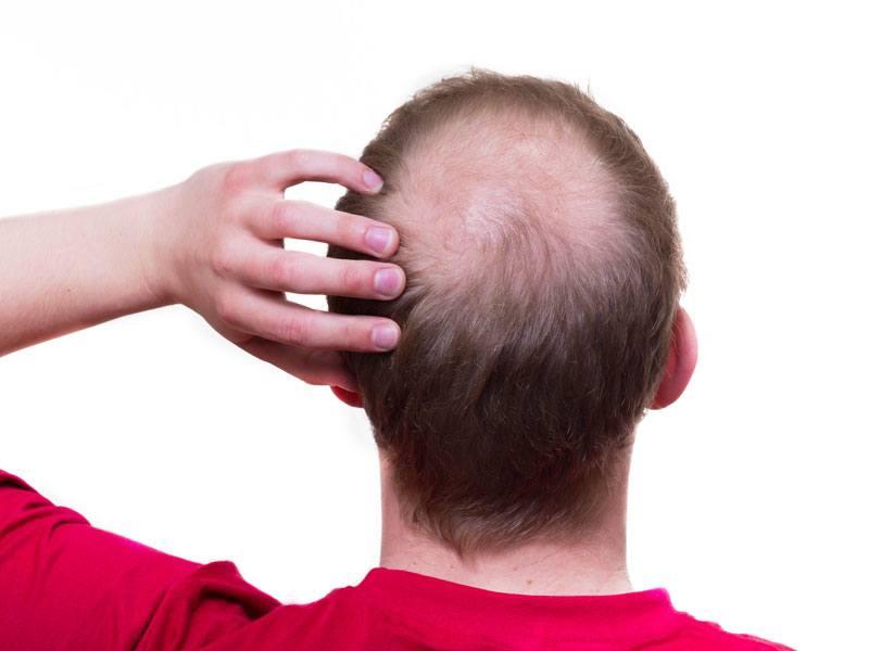 Hair Replacement Surgery Toronto