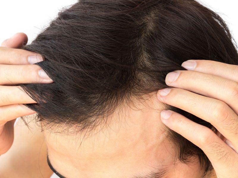 Hair Restoration Toronto