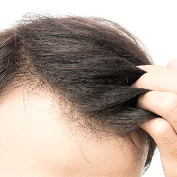Dry Scalp And How It Relates To Hair Loss Toronto Hair Transplant