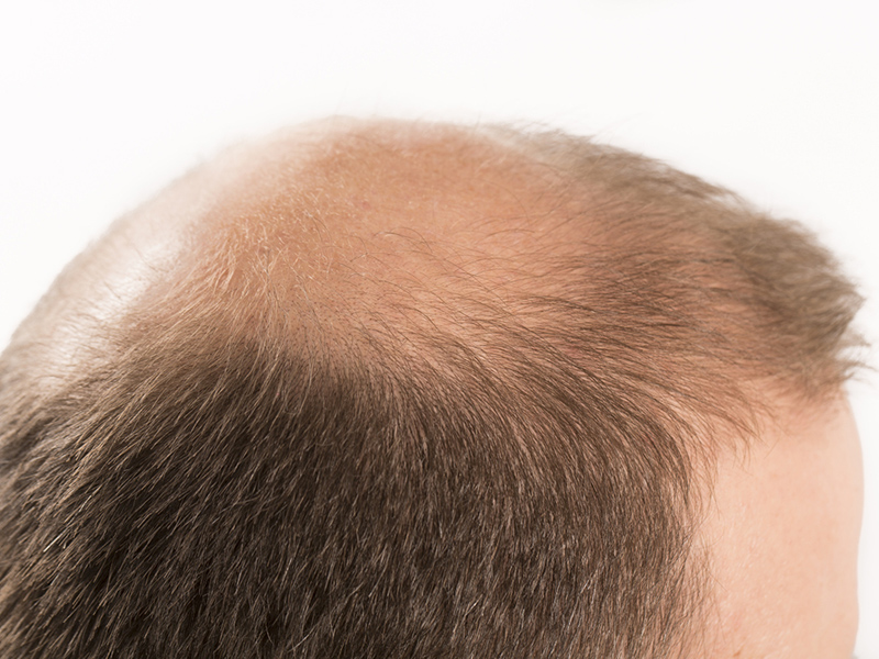 Alopecia Hair Loss