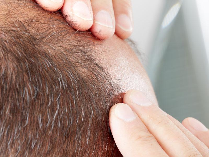 Hair Transplant Treatment Toronto