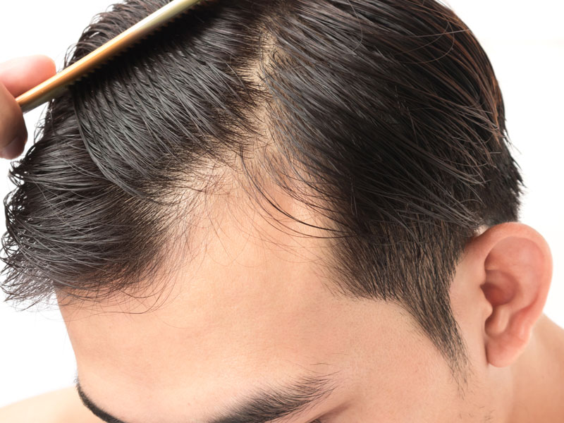 No Hair Loss During Chemotherapy The Toronto Hair Transplant Clinic