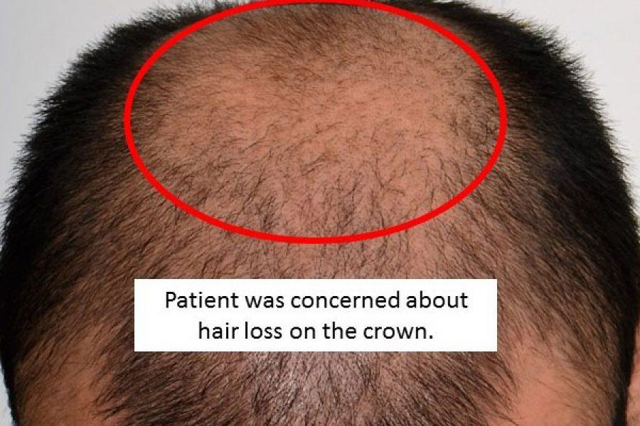Hair Loss Treatment – 6 Months
