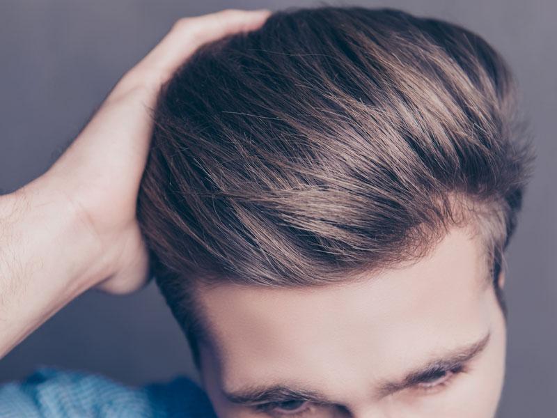 Hair Transplants Timeline