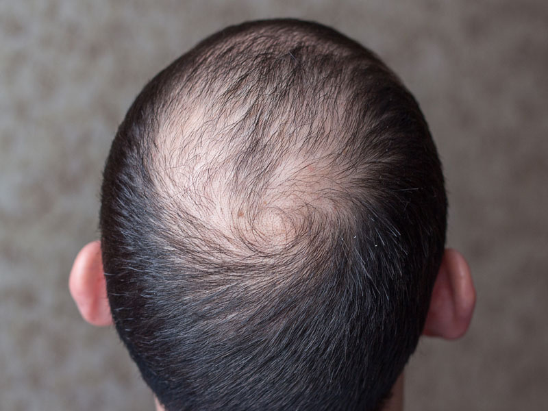 Hair loss solutions toronto