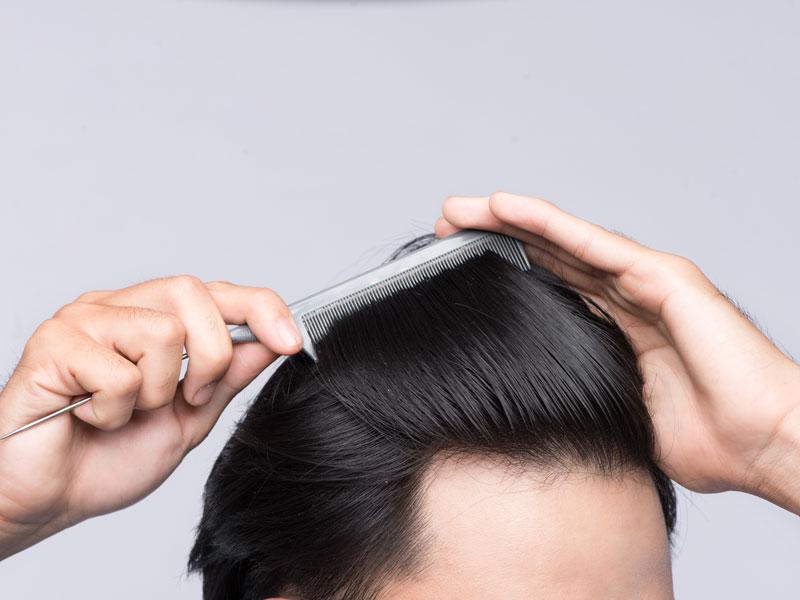 Remove Scalp Micropigmentation