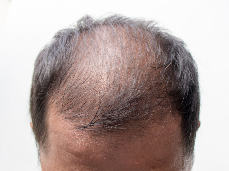 Scalp Micropigmentation Cover Scars