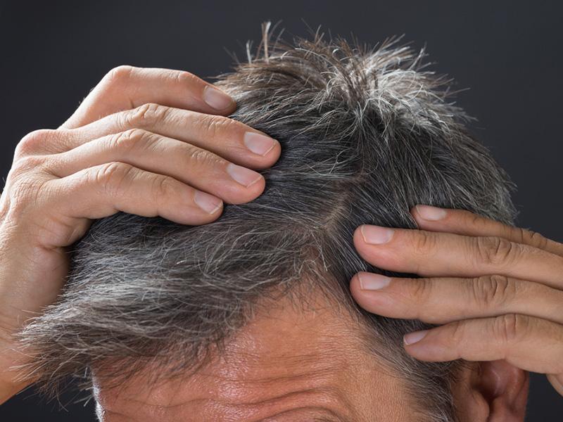 Hair Loss - Alopecia Hair Restoration Toronto