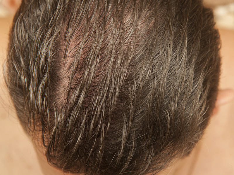 Hair Loss - Alopecia Hair Restoration Toronto
