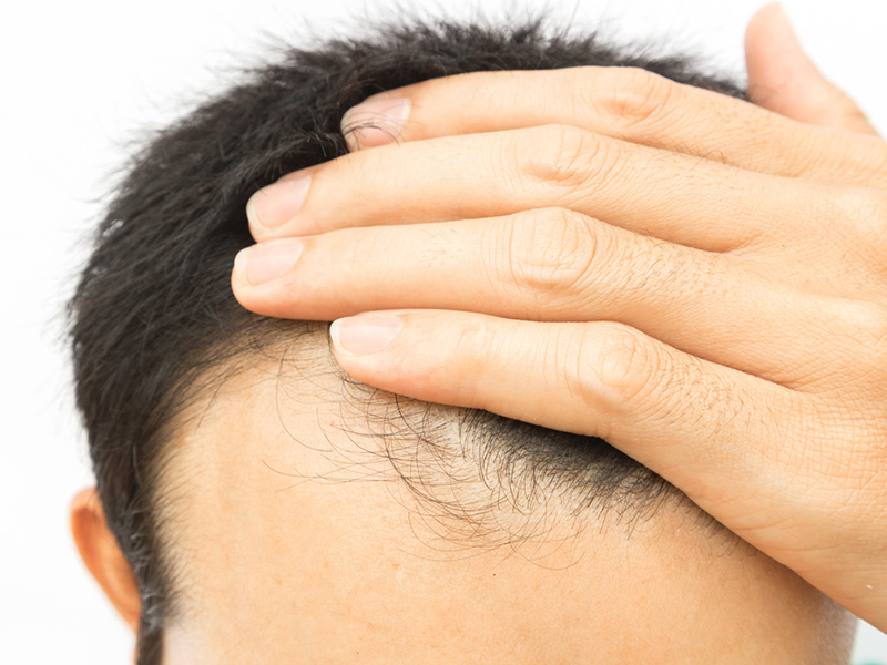 Hair Loss - Hair Restoration Toronto