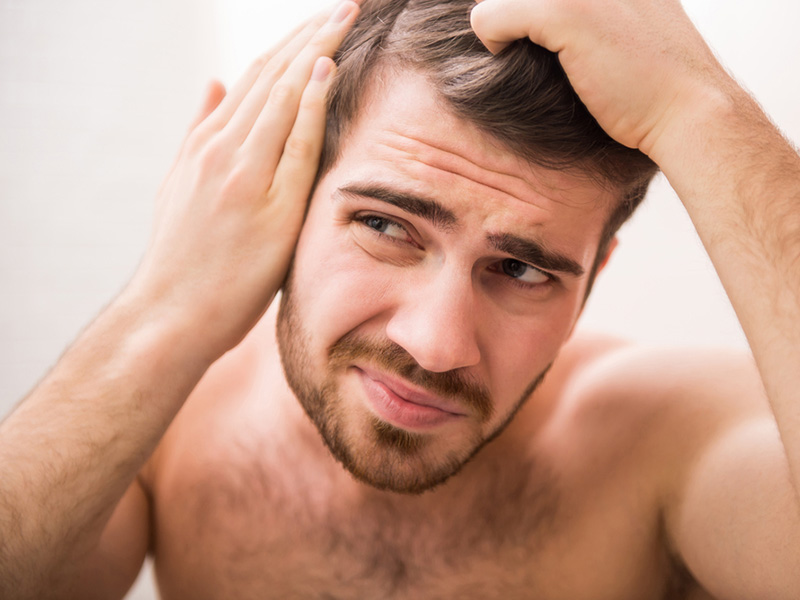 Hair Loss Treatment - Hair Restoration Toronto