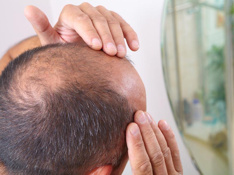 Hairline Restoration - Hair Restoration Toronto-2