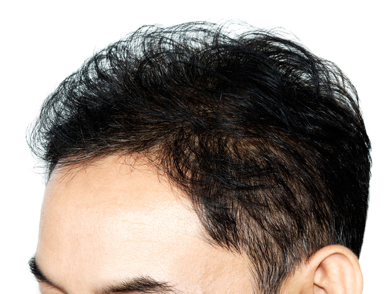 Hairline Restoration - Hair Restoration Toronto
