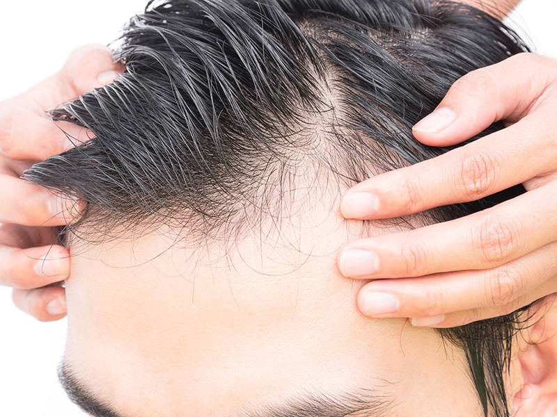 FUT, FUE, DHI – Explaining Different Hair Transplantation Techniques - Hair Restoration Toronto-2