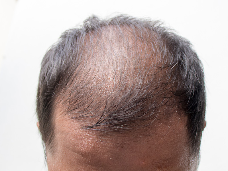 Fighting Male Pattern Baldness with Hair Restoration Treatments - Hair Restoration Toronto