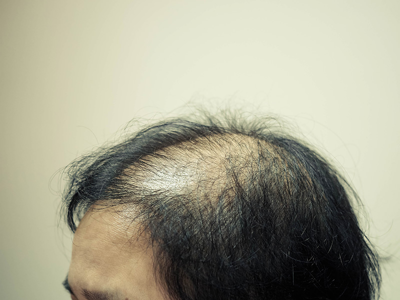 What is the Price of a Hair Transplant in Toronto - Hair Transplant Treatment Toronto