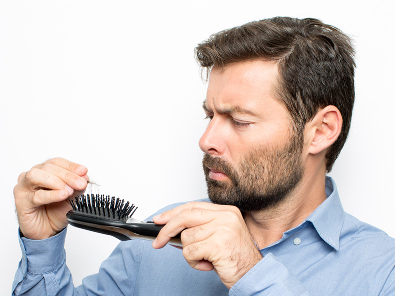 A Couple of Myths About Hair Loss