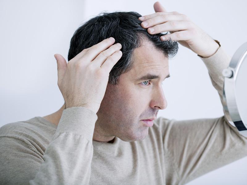 ¿Tengo que afeitarme la cabeza de un trasplante de pelo Fue-9966