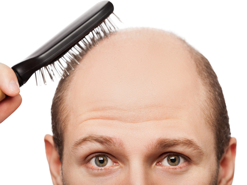 Do I Need To Shave My Head For An FUE Hair Transplant