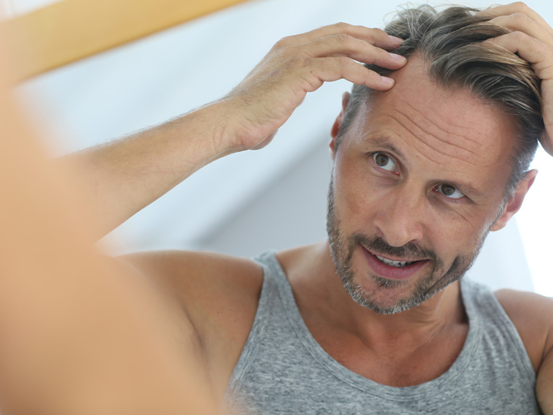 Hair Care And Styling After A Hair Transplant