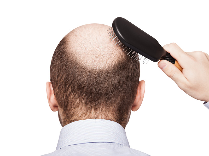 Hair Loss is in Your Genes - Part 1