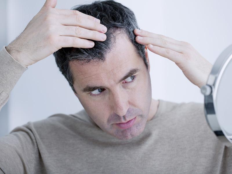 How Thyroid Disease Can Cause Hair Loss