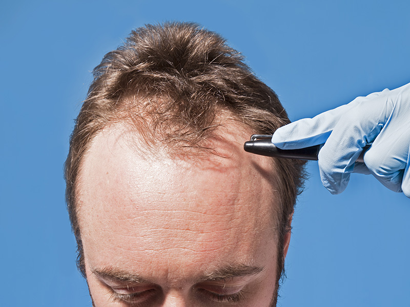 The Anatomy of Hair Transplantation