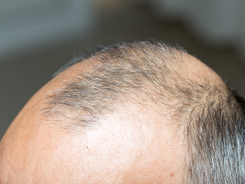 The Background of Hair Transplantation