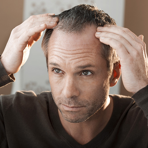 The Psychology of Male Hair Loss