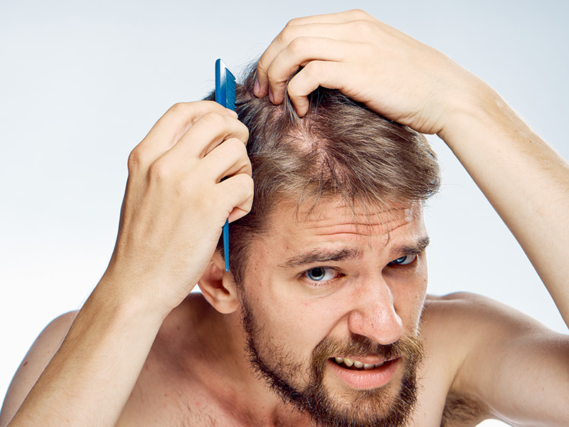 5 Things You Need To Know About Hair Transplants