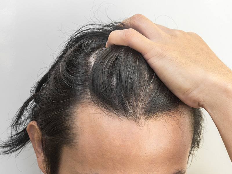 Finance Options For A Hair Transplant