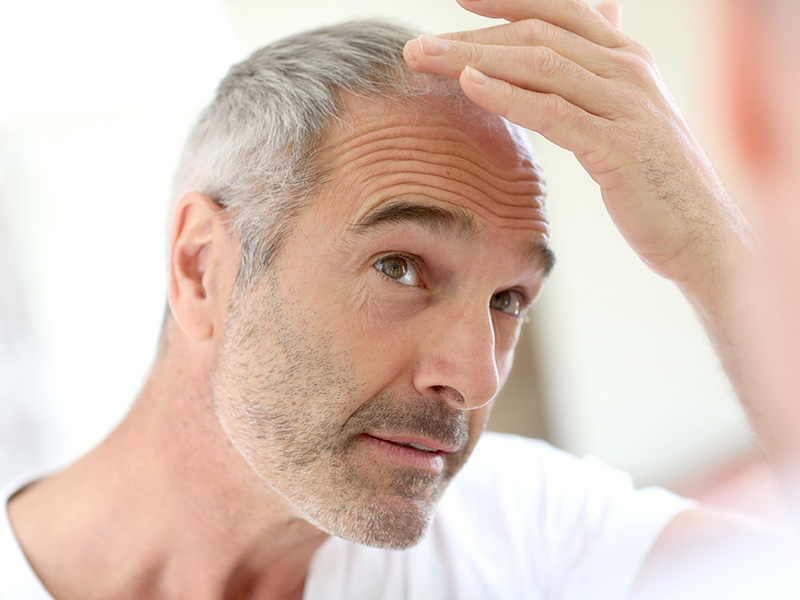 How To Cope With The Stress Of Your Hair Loss