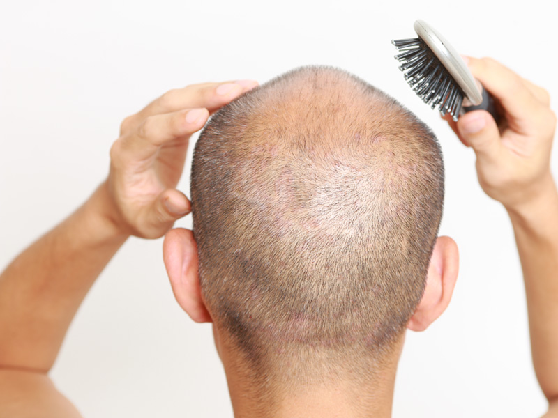 Does Hair Grow Back in the Donor Area After an FUE Hair Transplant Treatment