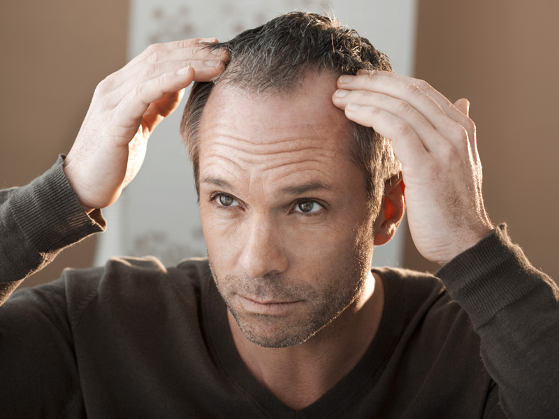 How Long Should Numbness Last After Your Hair Transplant Treatment