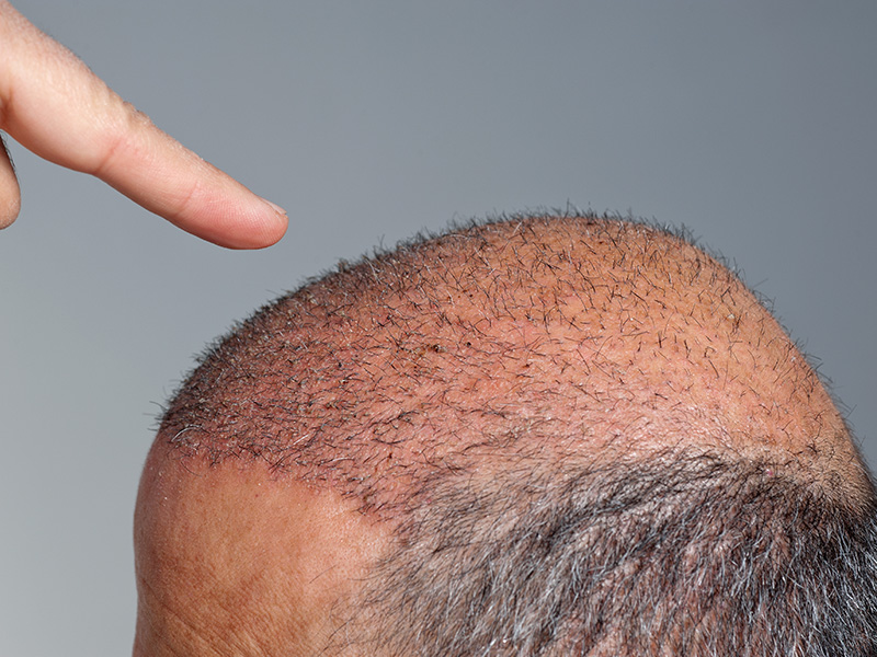 FUE Hair Transplant Advice