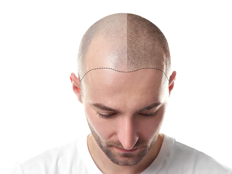 How An FUE Hair Transplant Can Change Your Life
