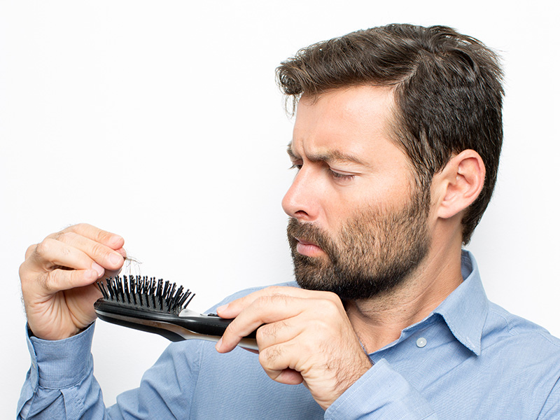 How Long Will An FUE Hair Transplant Last