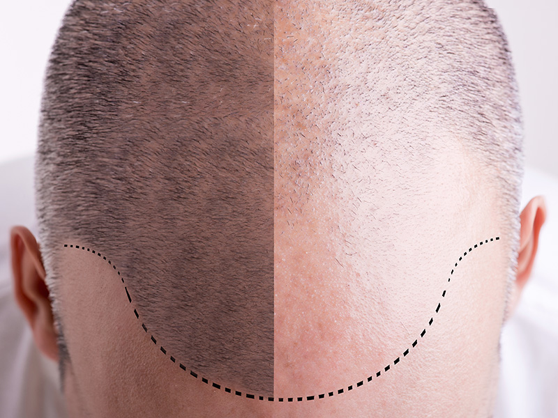 Using Scalp Micropigmentation As An Alternate Hair Loss Solution To Thinning Hair