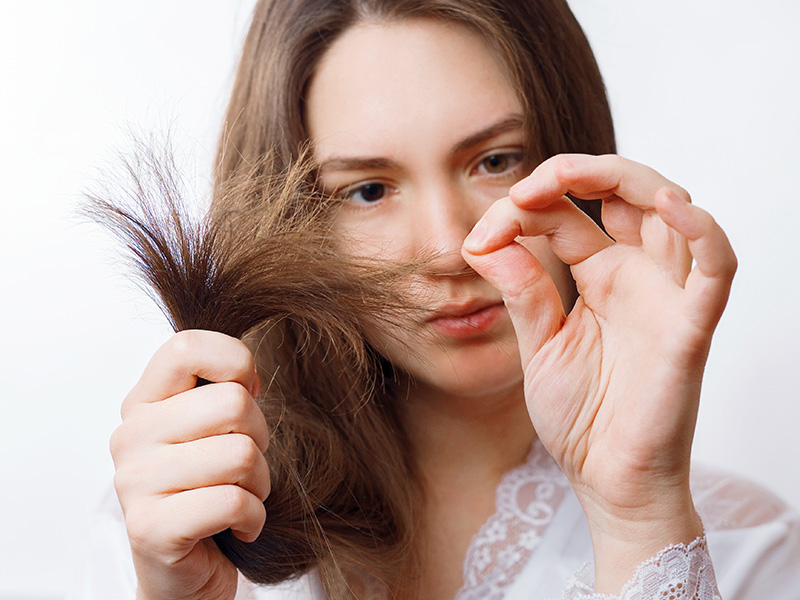 What Are The Different Types Of Hair Loss Conditions
