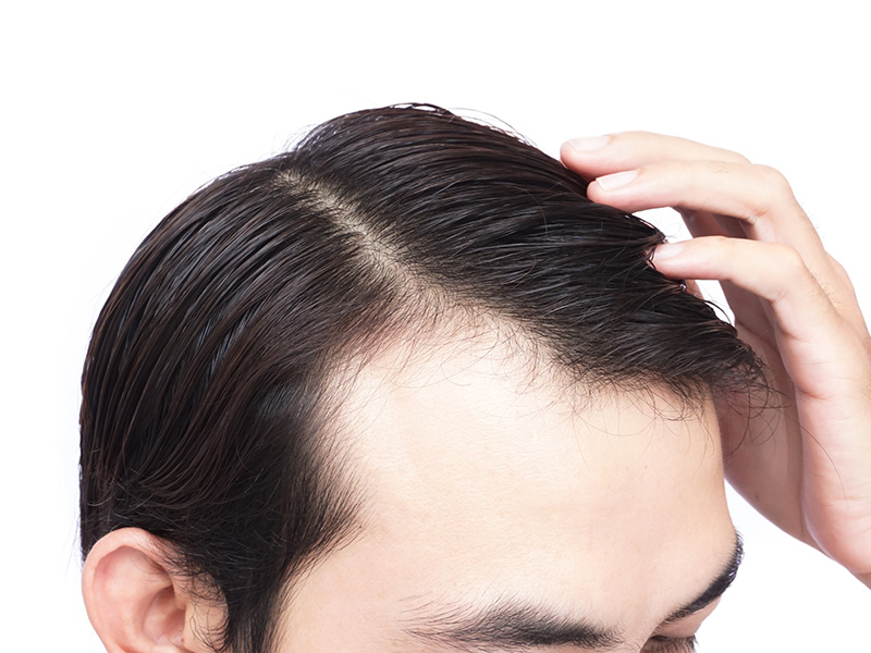 What To Do If Your Skin Is Breaking Out After Your Hair Loss Treatment