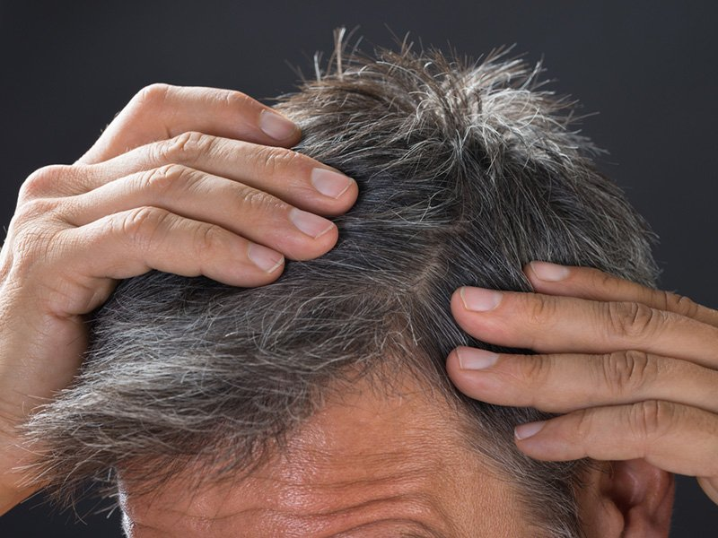 Hair-Loss-Alopecia-Hair-Restoration-Toronto-2