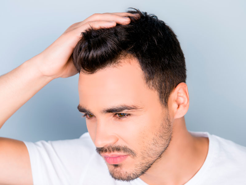 Toronto-Hair-Loss-Options—Have-You-Considered-Scalp-Micropigmentation