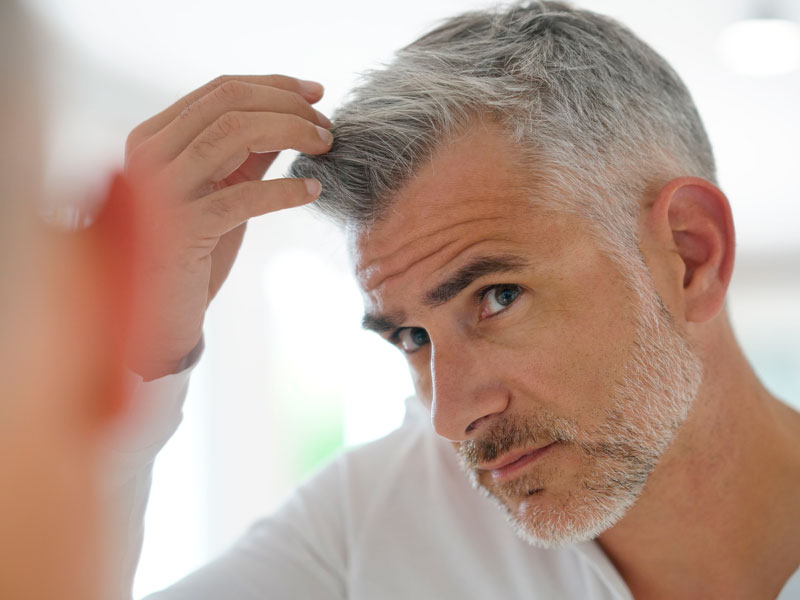 The-Cost-of-a-Hair-Transplant-in-Toronto