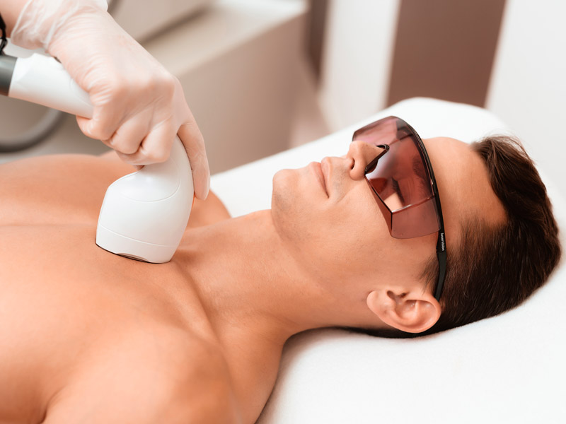 Before Undergoing Laser Hair Removal Toronto Hair