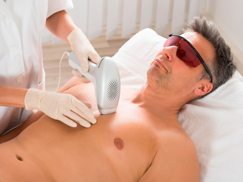 Laser Hair Removal Cost Why Choosing An Expert Is Important