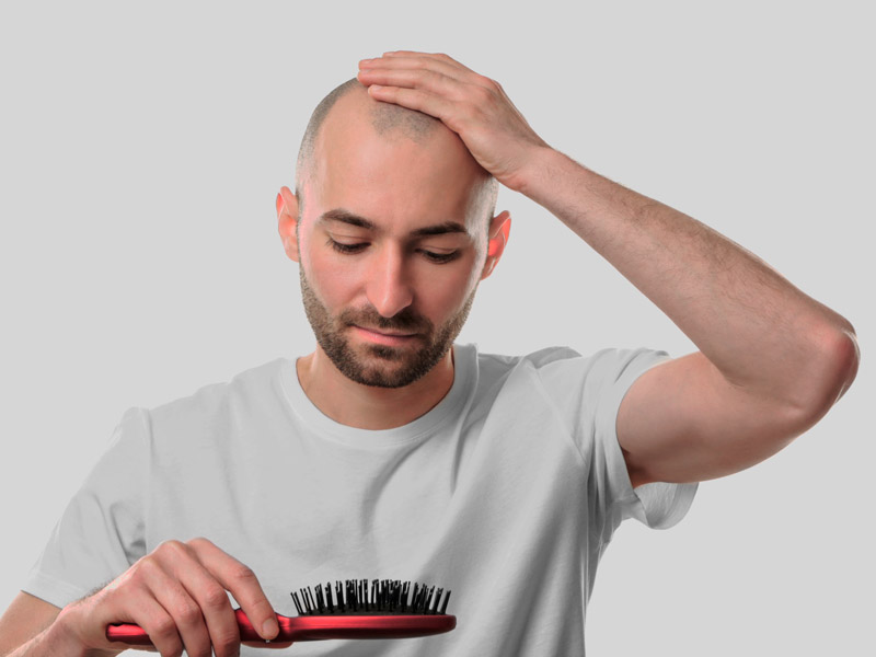 Do-Young-Balding-Men-Need-a-Long-Term-Hair-Restoration-Plan-Toronto