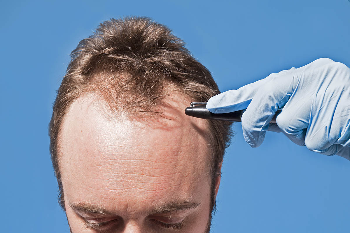 Hair Transplant in Toronto: Do You Know the Truth About Ideal Patient Age?