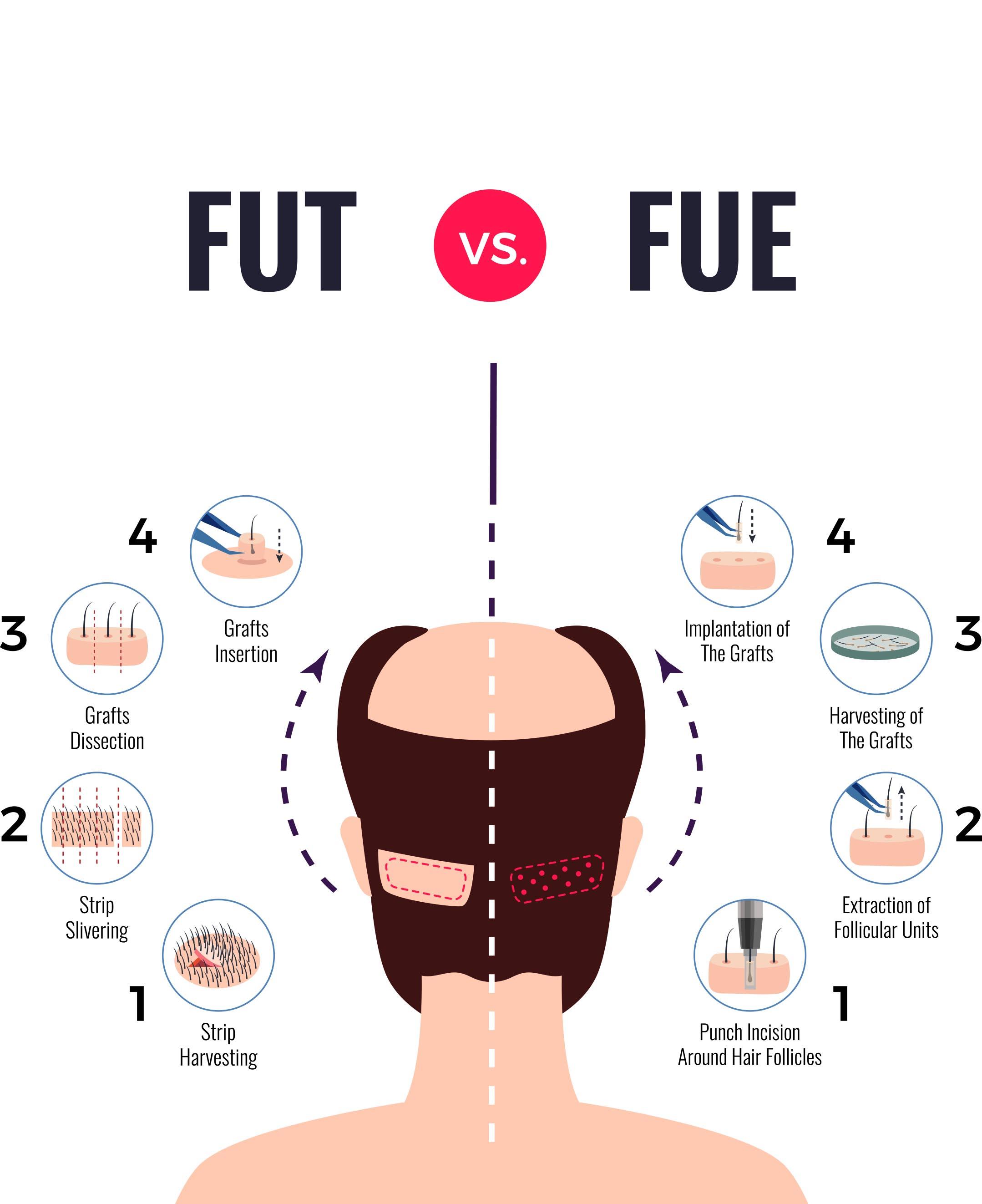 FUE Hair Transplant vs FUT